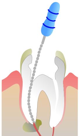 Odontologo para tratamiento de Endodoncia