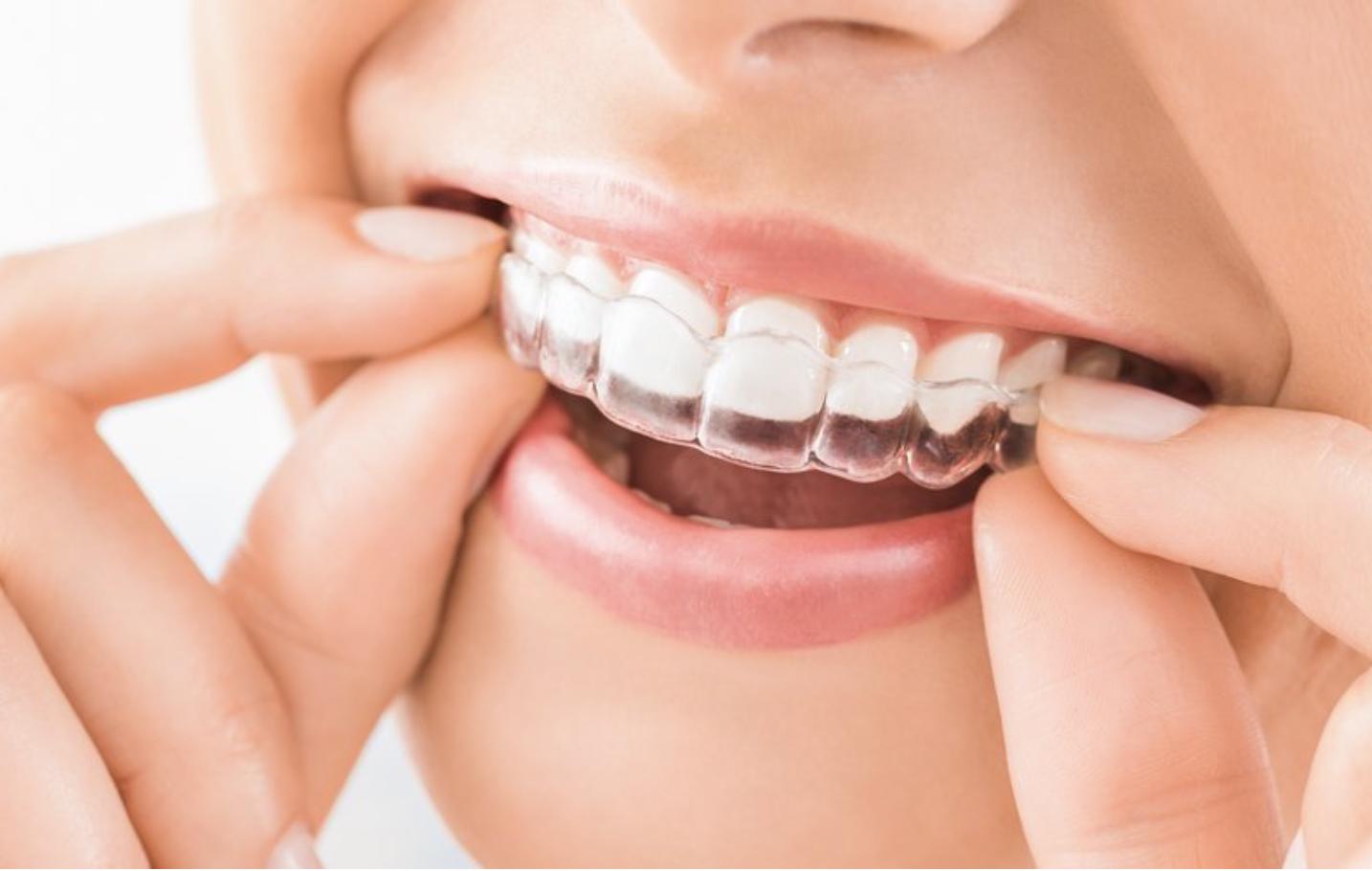 Tratamiento de ortodoncia en San Borja y Surco