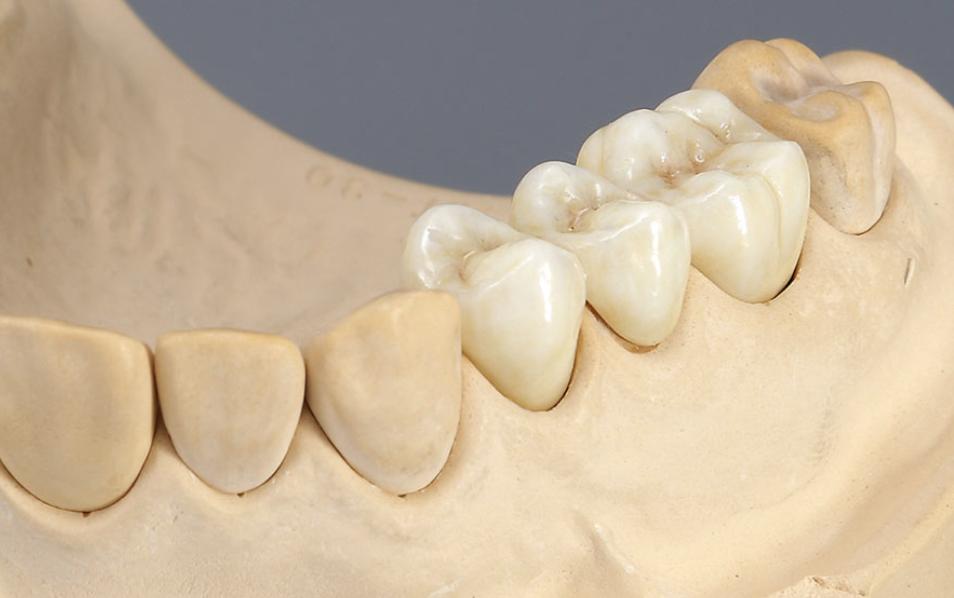 Rehabilitación oral en la Clínica Zavala