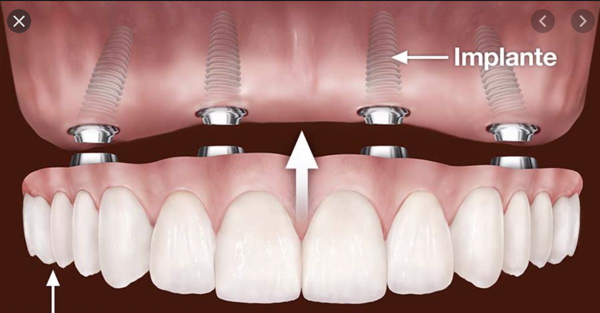 Implantes dentales en San Borja, San Isidro, Surco