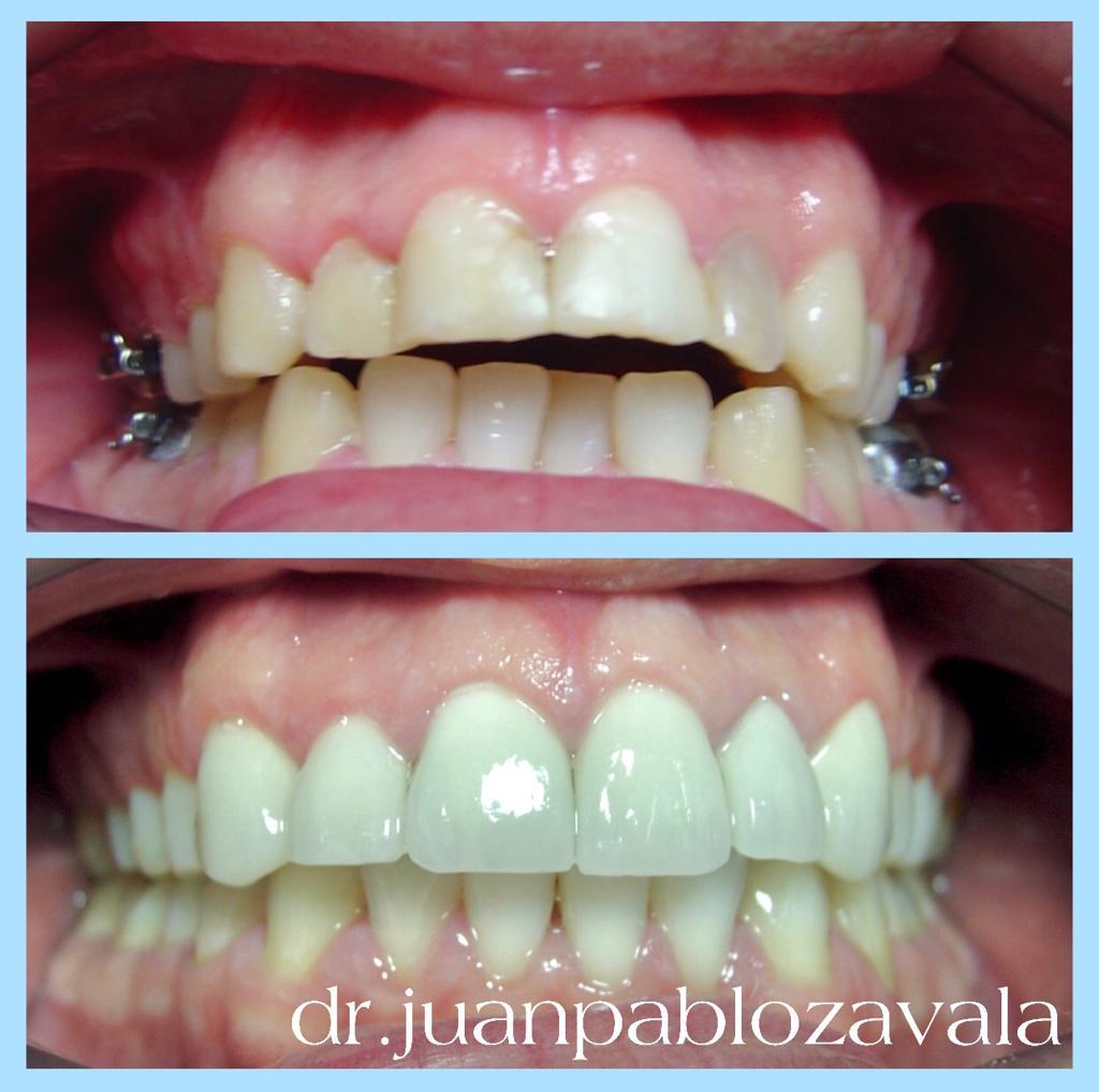 Clinica Zavala especialista en Estética Dental