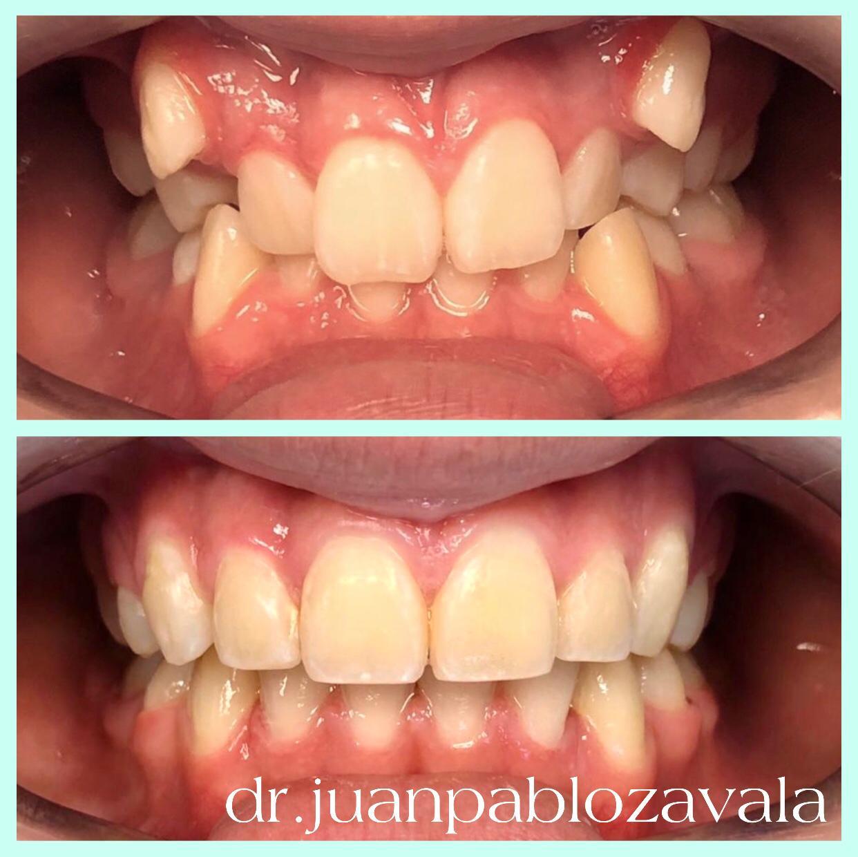 Clinica Zavala especialista en Ortodoncia