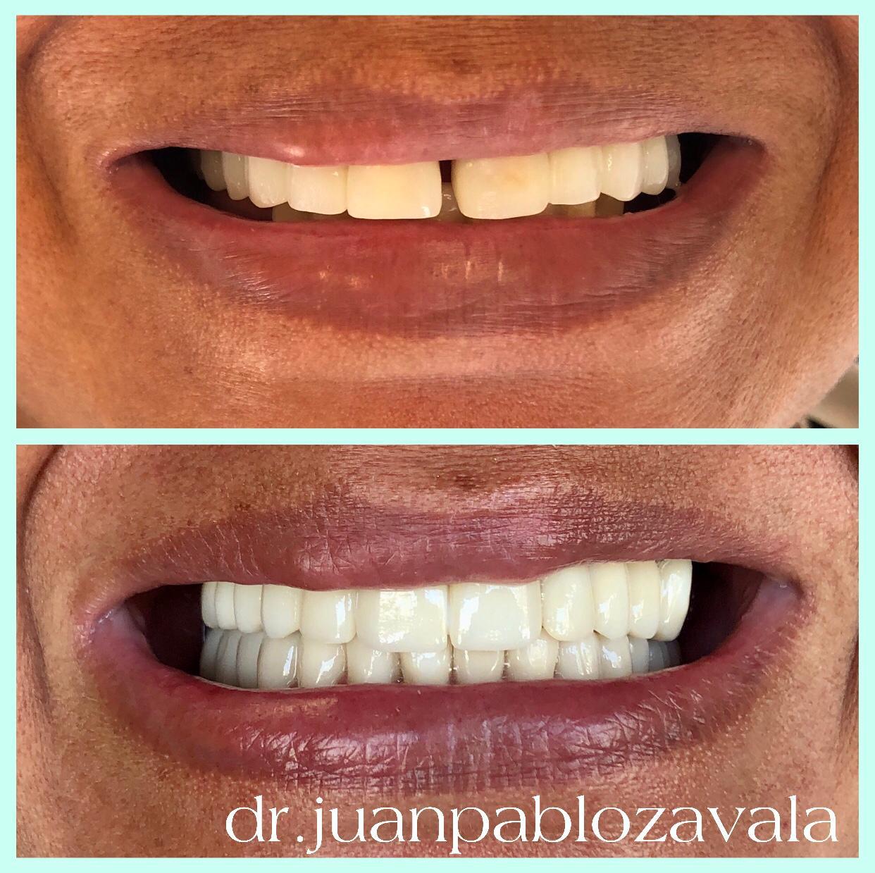 Clinica Zavala especialista en Rehabilitación Oral
